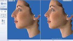 ρινοπλαστική σύγκριση εικόνες πριν και μετά