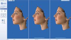 ρινοπλαστική σύγκριση 3d φωτογραφιών πριν μετά