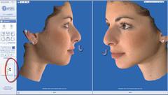 ρινοπλαστική ανύψωση κάτω μέρους μύτης
