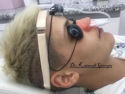 Συνεδρία Φωτοθεραπείας για συνεχές μπούκωμα μύτης ρινίτιδα , καταρροή & χρόνιες φλεγμονές μύτης